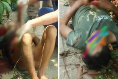 Người đàn ông ở Hà Tĩnh tự cầm dao mổ bụng, nghi do uống rượu