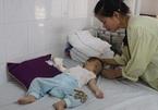 Thương bé gái 13 tháng tuổi bị bỏng nặng phải cắt cụt từng ngón tay