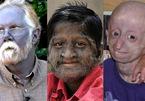 Top 10 căn bệnh kỳ lạ và đáng sợ nhất trên thế giới, y học chưa có lời giải