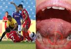 Cầu thủ Bình Dương bị 'nuốt lưỡi' sau cú va chạm, lưỡi có tụt vào trong?