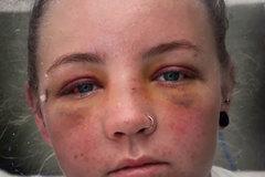 Nữ du khách Anh xinh đẹp bị đánh đập, cưỡng hiếp ở Australia