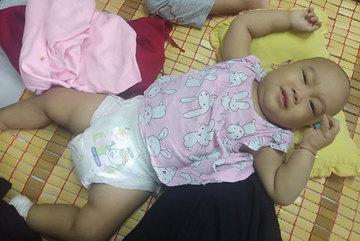 Bé gái khóc thảm thiết vì khối u to như nắm tay sau lưng