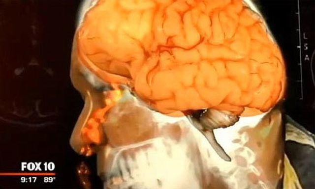 Não người đàn ông đầy vết rỗ sau khi cố quan hệ tình dục với vợ