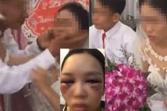 Xôn xao ảnh cô dâu bị đánh bầm tím mặt vì từ chối hôn chồng trong đám cưới và sự thật nhiều người ngã ngửa