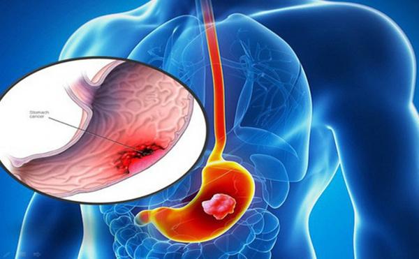 Những dấu hiệu tố cáo bị ung thư dạ dày cần ghi nhớ