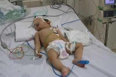 Tivi 34 inch rơi trúng đầu, bé 13 tháng dập não hôn mê