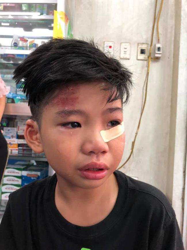 Con trai siêu mẫu Hạ Vy bị ô tô tông chấn động não rồi bỏ đi