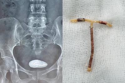 Tưởng vòng tránh thai rơi ra ngoài, không ngờ chui tọt vào bụng nhiều năm