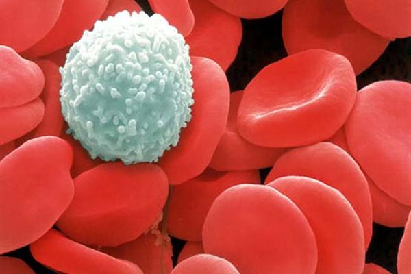 nhiễm trùng huyết,sốt virus