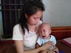 Bị u não ác tính, bé trai 3 tuổi liệt cả hai chân