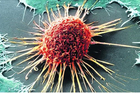 """Tìm ra tế bào """"khóa"""" ung thư ngay trong xương người"""