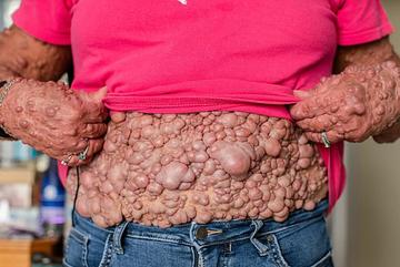 Người phụ nữ có hàng ngàn khối u mọc tua tủa trên người tìm được hạnh phúc