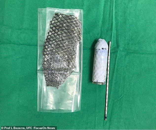 Không thể quan hệ tình dục, người phụ nữ lấy da cá rô phi làm âm đạo