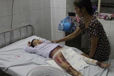 Tai nạn thương tâm: bé gái bị bỏng cồn cầu cứu