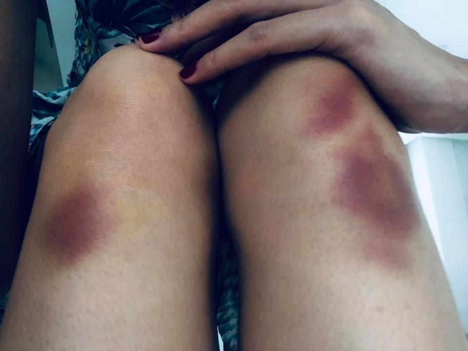 Thủy Tiên ngã chấn thương lưng khi tập vũ đạo trên không