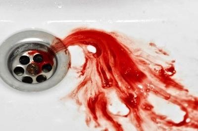 Cô gái trẻ nôn ra 2 lít máu, phải cắt bỏ 60% dạ dày vì ung thư