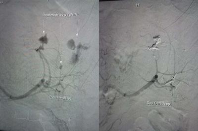 Nam bệnh nhân bị vỡ lá lách được cứu sống mà không cần phẫu thuật
