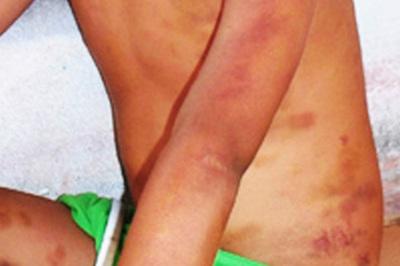 Bé trai 9 tuổi ở Hậu Giang bị cha đánh dã man do chậm tiếp thu bài