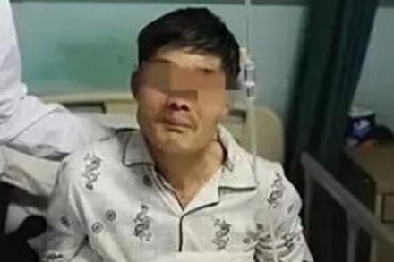 Người đàn ông say rượu nôn ra khối u 10cm, sau đó cố nuốt trở lại
