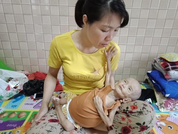 Thương bé trai 1 tuổi u gan ác tính, cơ thể chỉ còn da bọc xương