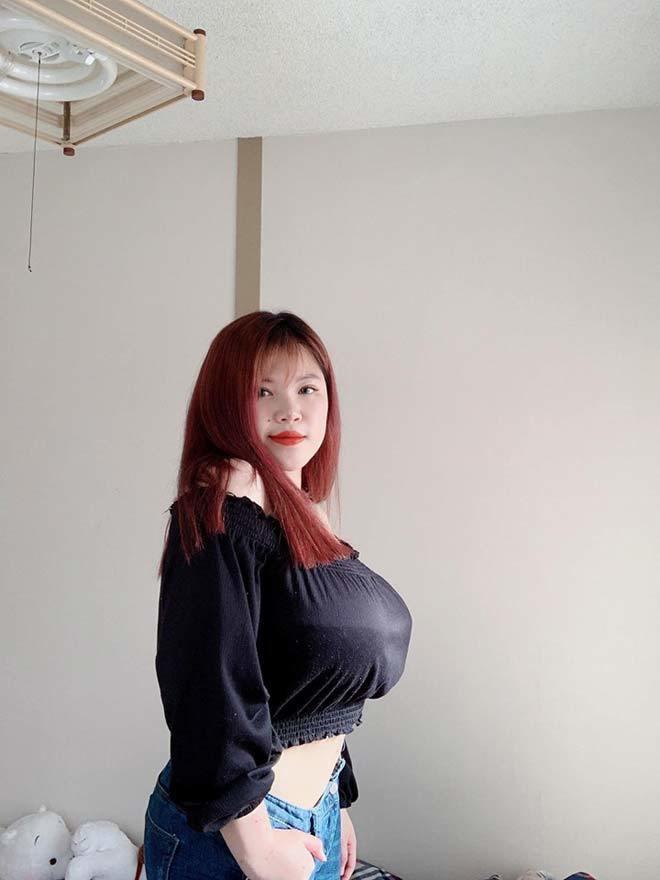 Hot girl,Phẫu thuật thẩm mỹ