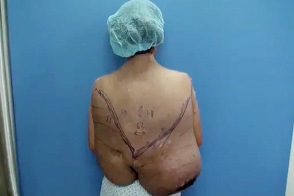 Người phụ nữ cõng khối u gần 20kg nuôi chồng mù và 4 con
