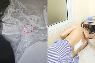 Người đàn ông Quảng Ninh bị liệt tứ chi, tưởng chết tại chỗ được cứu sống