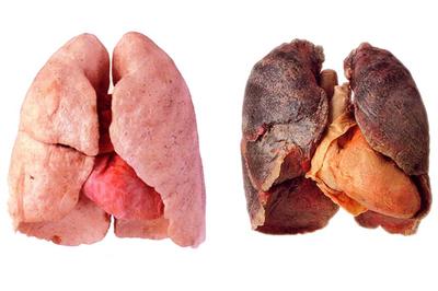 'Sát thủ' 95 triệu người Việt tiếp xúc hàng ngày làm tăng 22 lần mắc ung thư phổi