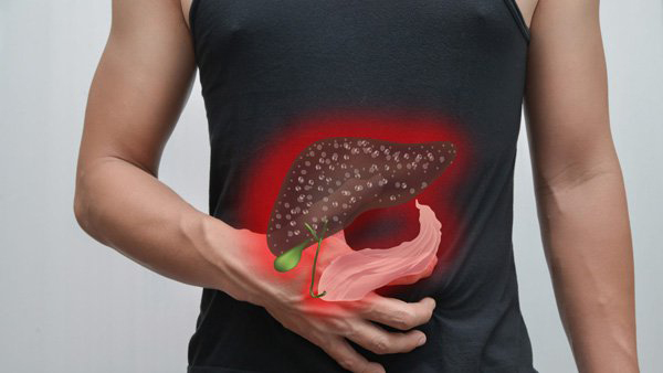 Việt Nam đứng thứ 3 thế giới về ung thư gan, bác sĩ chỉ cách phát hiện bệnh sớm