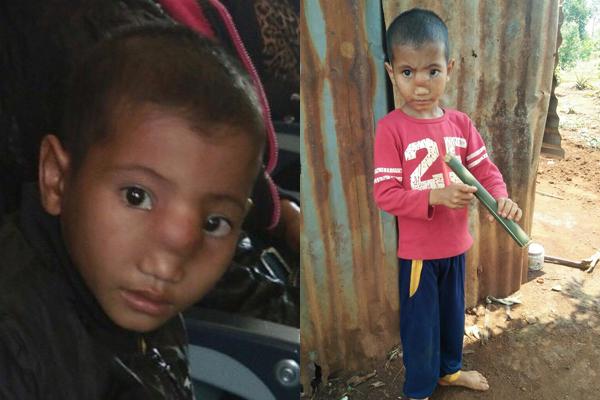Bé trai 5 tuổi sống trong ngôi nhà 8m2 bị tụt não xuống mũi