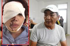 """Bố của cô gái bị chồng sắp cưới tạt axit biến dạng gương mặt: """"Nó làm thế còn đau đớn hơn giết người"""""""