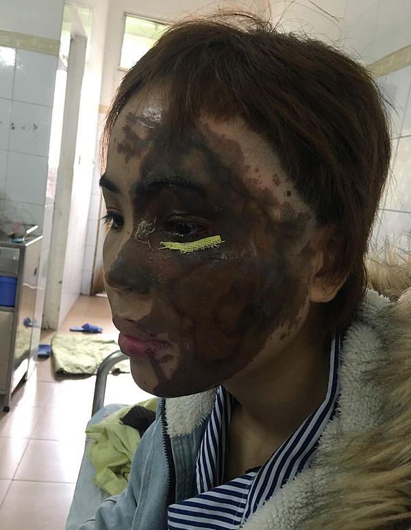Hành trình hồi sinh gương mặt xinh đẹp cho cô gái bị thiếu úy tạt axit