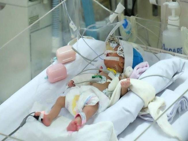 bệnh tim bẩm sinh,bệnh viện Nhi đồng 1