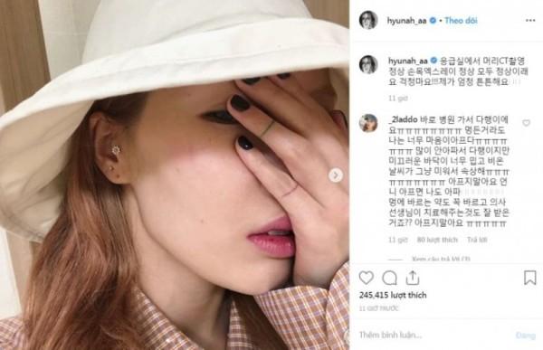 'Nữ hoàng quyến rũ' HyunA liên tụcgặp sự cố lộ hàng, ngã dập đầu