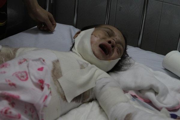 Tiếng khóc xé lòng của bé gái dân tộc bị bỏng điện toàn thân