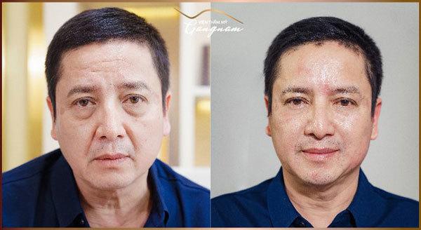 Căng chỉ Collagen Smart Fiber, trẻ hóa làn da quanh mắt