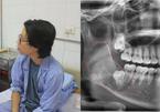 Thanh niên Hà Nội tưởng mọc răng khôn, bác sĩ lôi ra 'thủ phạm' trong miệng