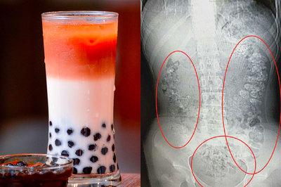 Nghiện trà sữa, bé gái 14 tuổi bị hạt trân châu kẹt đầy bụng