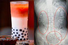 Nữ sinh nhập viện vì nghiện trà sữa, bác sĩ cảnh báo khẩn