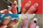 Cô gái trẻ suýt phải cắt cụt ngón tay vì điều ít để ý khi đi làm nail