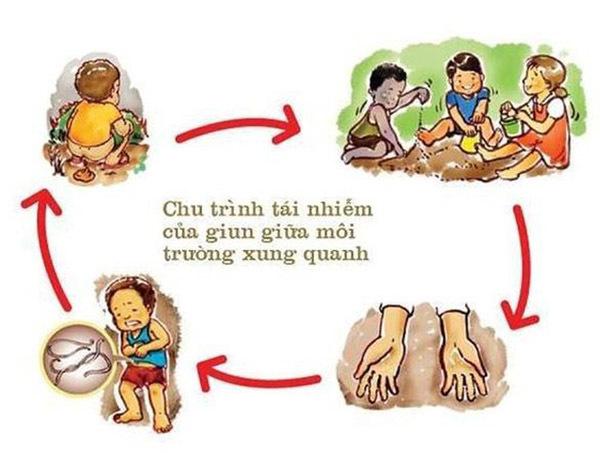 Trẻ bị giun, sức khỏe trẻ em, Bệnh giun đũa ký sinh
