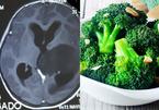 Bé gái bị u não, bố mẹ bỏ điều trị cho con ăn toàn rau 2 tháng để triệt u
