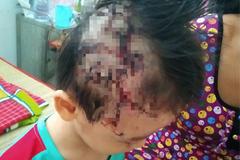 Bé trai 5 tuổi bị chó bécgiê 17kg cắn tét da đầu, rách mí mắt
