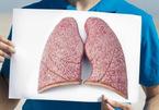 10 nghề nghiệp đẩy bạn gần hơn tới căn bệnh ung thư phổi
