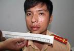 Nhóm côn đồ xưng cảnh sát hình sự chửi bới, đấm vào mặt Đại úy Công an