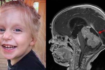 Được chẩn đoán táo bón, bé gái 4 tuổi đột ngột tử vong sau vài tuần