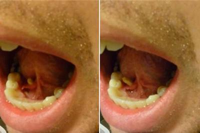 Nam thanh niên Hà Nội ngỡ quai bị, bác sĩ gắp ra viên sỏi từ miệng