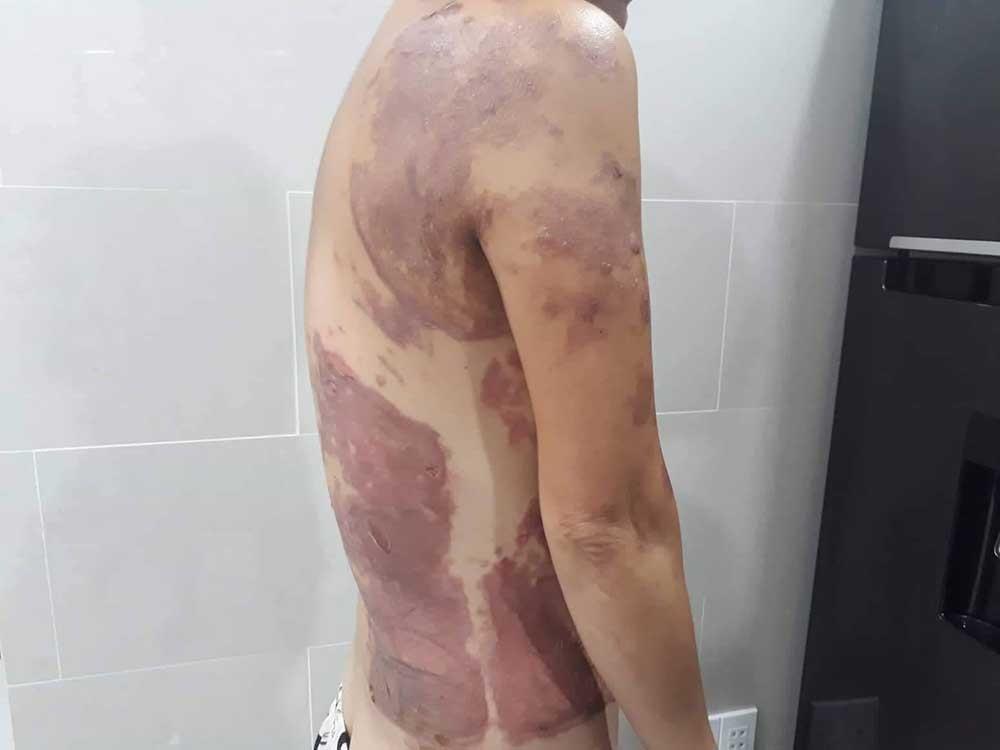 Nhắc đậu ô tô ở trung tâm Sài Gòn, người phụ nữ bị tạt dầu sôi