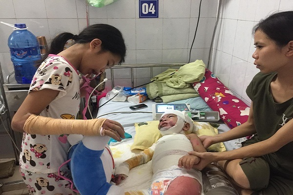 Bố mẹ nghèo khóc nghẹn xin cứu 2 con bị bỏng nặng