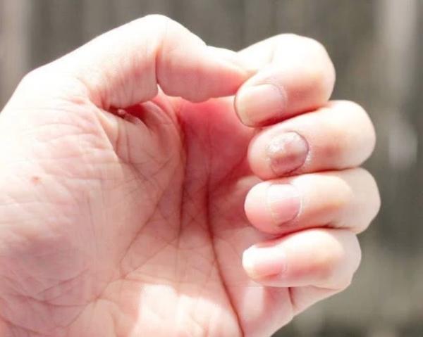 5 triệu chứng lặp đi lặp lại chứng tỏ gan đang tích tụ quá nhiều độc tố
